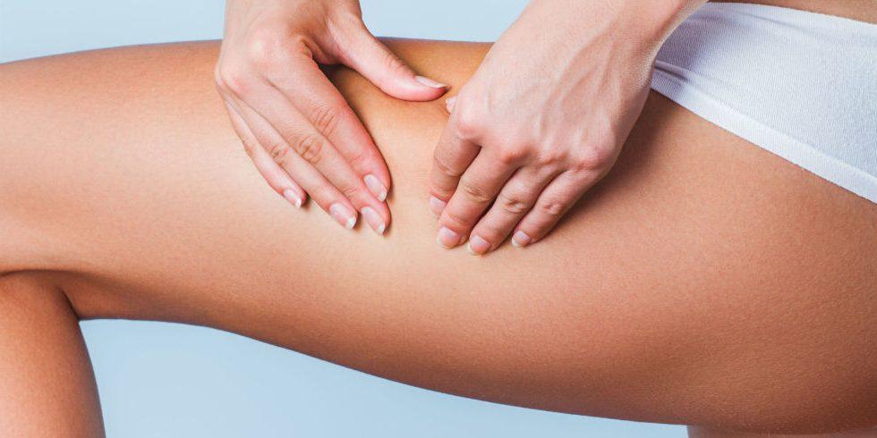 cosè la cellulite nelle gambe