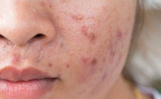 ragazza con acne e cicatrici