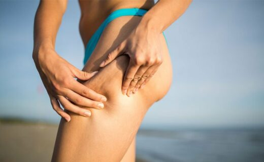 cellulite_come sconfiggerla