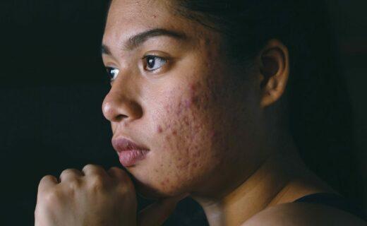 volto di donna con acne
